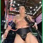 日馬富士が注意を受けた黒い肘サポーターはなぜダメなのか?